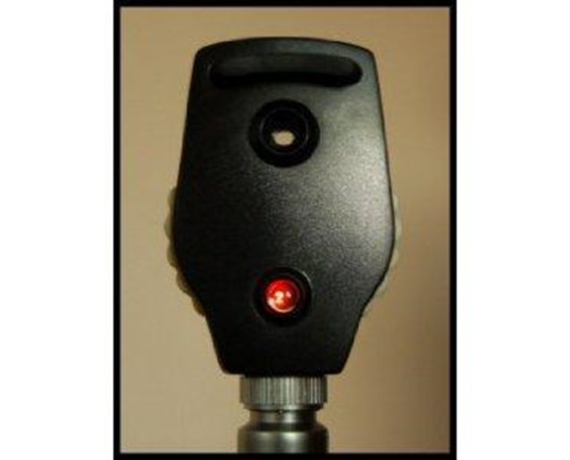 2.5 V Lamp for Standard Ophthalmoscope ADC5210-4