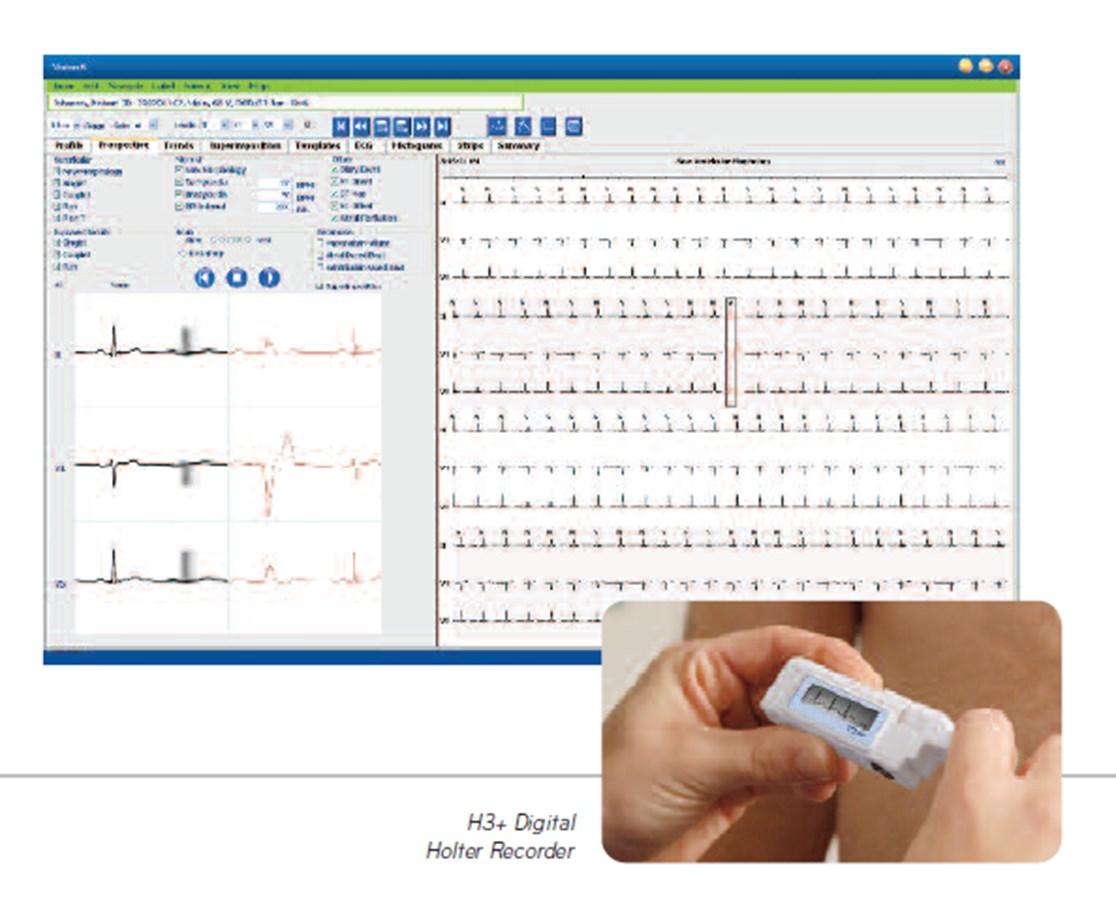 Vision 5 Holter System BURV53H-1