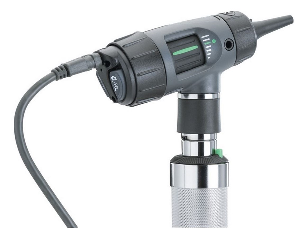 Welch Allyn Digital MacroView Otoscope