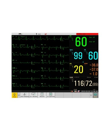 EDAEliteV8 Modular Patient Monitor - Screen Mode