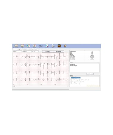 EDASE-1010 PC-Based ECG Machine - sample display view
