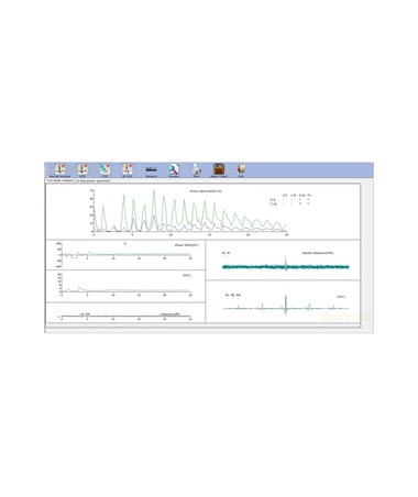 EDASE-1010 PC-Based ECG Machine - sample screen view
