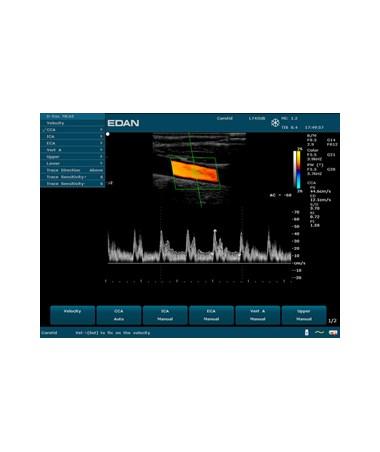 EDAU50 Prime Diagnostic Ultrasound System - Vascular (carotid auto doppler)